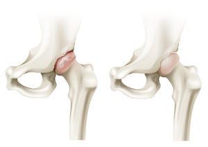 artrosis de cadera. Prometheus Fisioterapia.