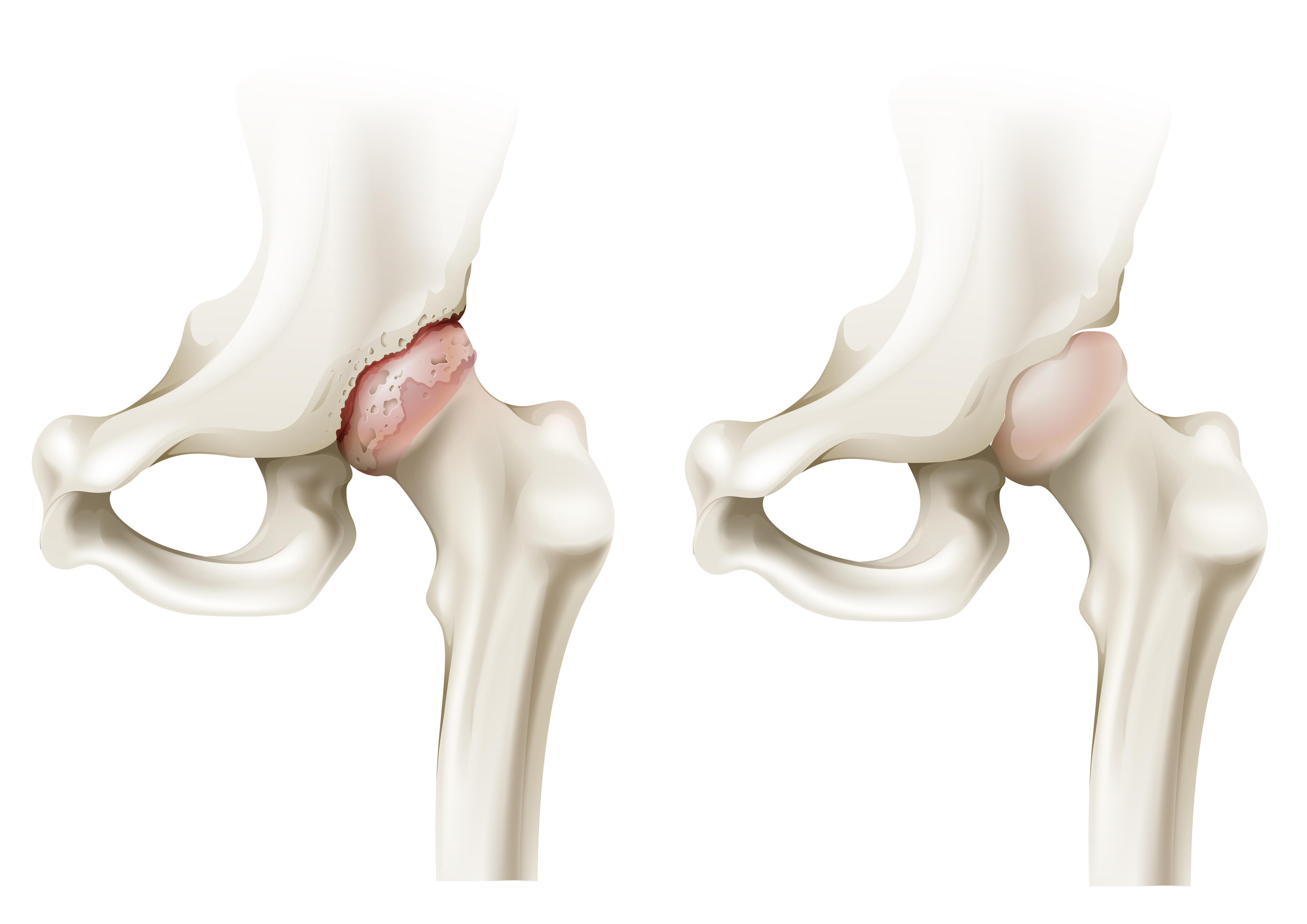 Artrosis de cadera: Factores de riesgo y tratamiento